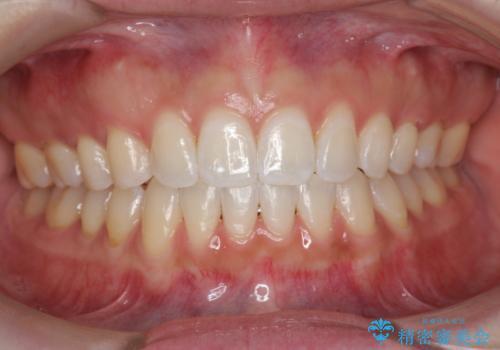 オフィスホワイトニングで、白い歯に!の治療後