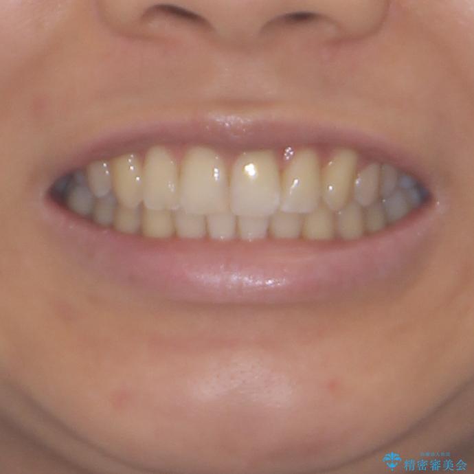 インビザラインによる矯正治療 カリエールディスタライザーを用いた奥歯の咬み合わせ改善の治療後(顔貌)