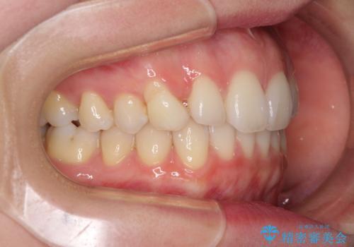 狭い上顎骨を拡大 急速拡大装置を併用したインビザライン矯正の治療中