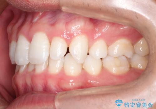 【インビザライン】笑った時の歯並びを綺麗にしたいの治療前