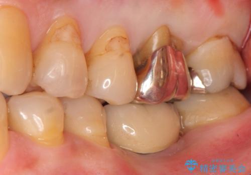 奥歯がわれている ソケットリフトを併用した奥歯のインプラント 60代男性の治療前