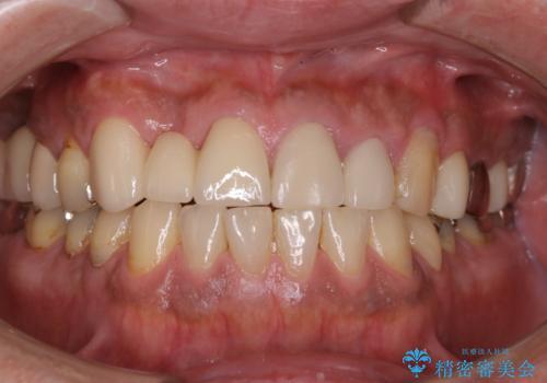 イベント前に綺麗な歯にしたいの症例 治療前