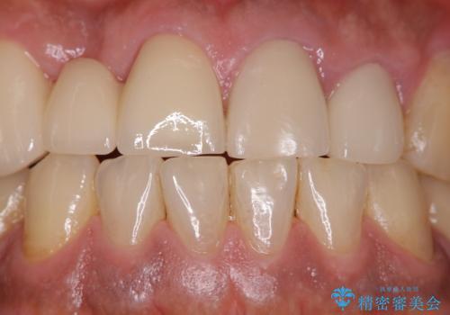 イベント前に綺麗な歯にしたいの治療前
