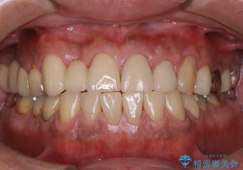 イベント前に綺麗な歯にしたいの症例 治療後