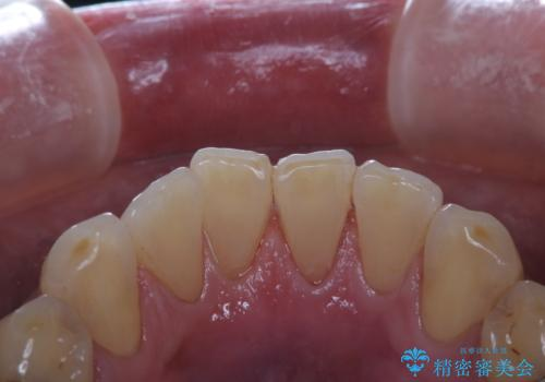 イベント前に綺麗な歯にしたいの治療後
