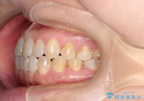 前歯の隙間 インビザラインによる目立たない成人矯正の治療中
