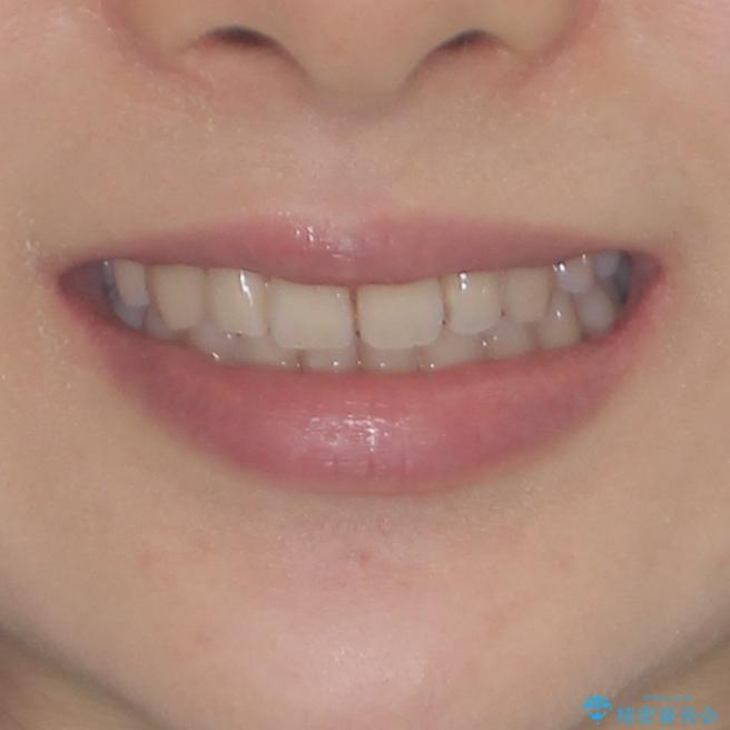 前歯2本が欠損 抜歯矯正でデコボコを治すの治療後(顔貌)