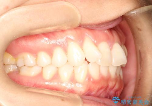 インビザラインによる矯正治療 前歯を整った歯並びへの治療前