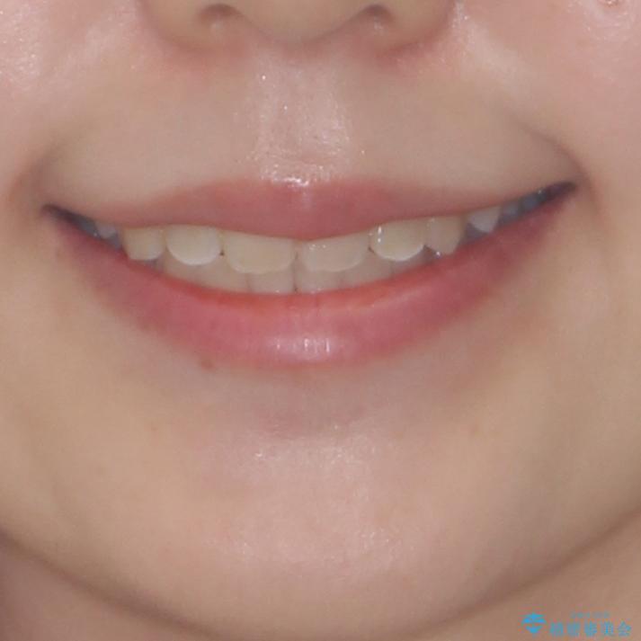 前後に重なった前歯 ワイヤー装置と急速拡大装置を併用したインビザライン矯正の治療後(顔貌)