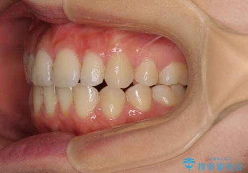 前歯2本が欠損 抜歯矯正でデコボコを治すの治療後