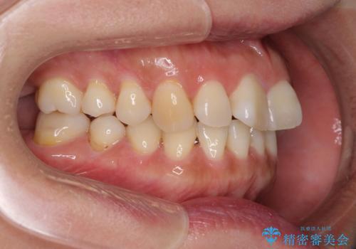 軽度な歯列不正 インビザライン・ライトによる矯正治療の治療前