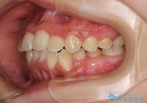 前後に重なった前歯 ワイヤー装置と急速拡大装置を併用したインビザライン矯正の治療中