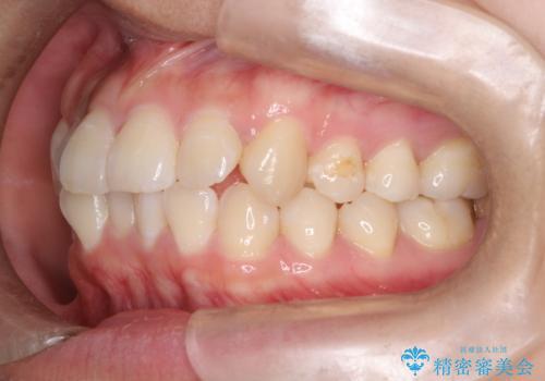 【インビザライン】前歯の凸凹をなおしたいの治療前