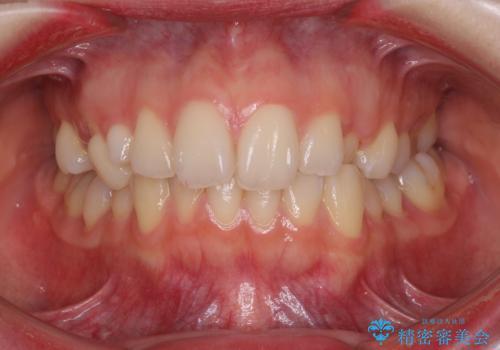 狭い上顎骨を拡大 急速拡大装置を併用したインビザライン矯正の治療前