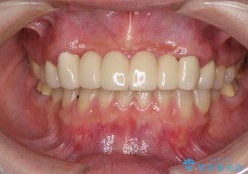 出血が止まらない インプラント補綴を用いた歯周病治療の症例 治療前