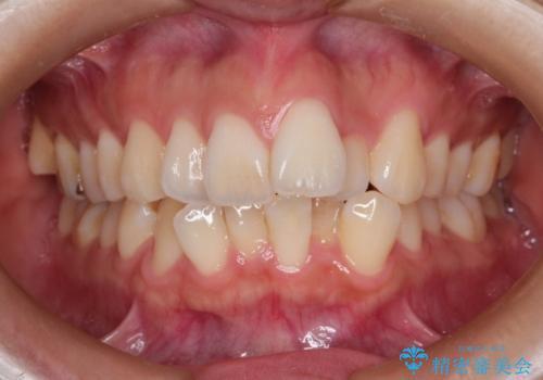 スッキリとした口元へ 出っ歯の抜歯矯正の治療前