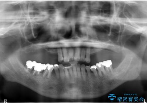 奥歯がないまま過ごしていたら前歯もぐらぐらしてきた 60代女性の治療前