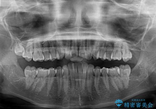 費用を抑えた抜歯矯正 口元の突出感の改善の治療前