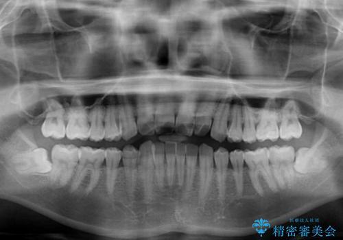 気になる前歯のデコボコをインビザラインで解消の治療前