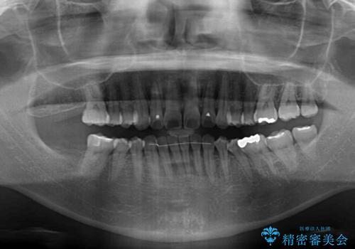 軽度な歯列不正 インビザライン・ライトによる矯正治療の治療後