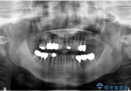 歯ぐきから血が出る、歯ぐきが腫れている 80代女性の治療後