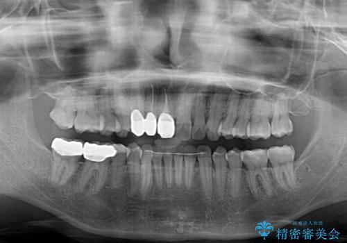 歯並びと目立つ金属を治したい 総合歯科治療の治療後