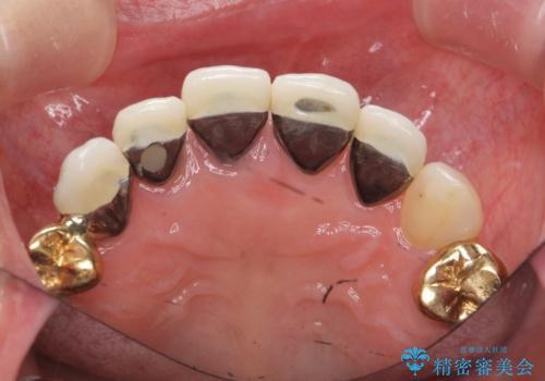 状況に応じた前歯の補綴計画の治療前