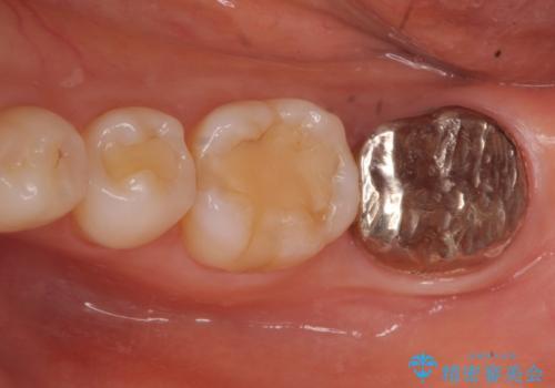 歯が割れた 親知らずの移植 30代女性の症例 治療前