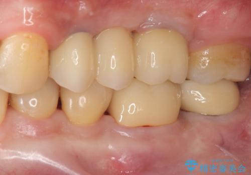 咬合平面を揃え、早期接触・干渉を防ぐ補綴治療の症例 治療後