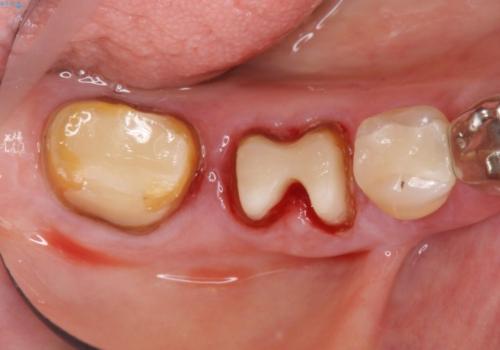 歯ぐきから血が出る、歯ぐきが腫れている 80代女性の治療中