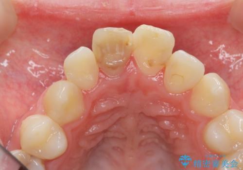 [前歯の変色] 前歯の見た目を改善したいの治療前