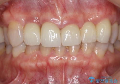 [歯ぐきの腫れを改善]  不適合なセラミッククラウンの治療後