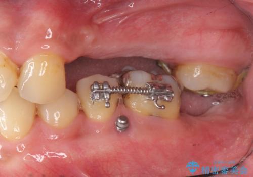 咬合平面を揃え、早期接触・干渉を防ぐ補綴治療の治療中