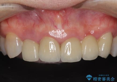 [歯ぐきの腫れを改善]  不適合なセラミッククラウンの症例 治療前