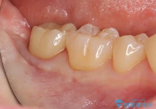 親知らずを起因とする虫歯治療の治療後