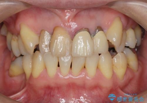 [前歯のグラつき] 根本的な前歯の審美治療を希望の治療前