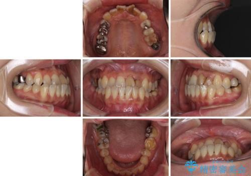 反対咬合で痛む前歯を改善 インビザラインによる矯正治療の治療前