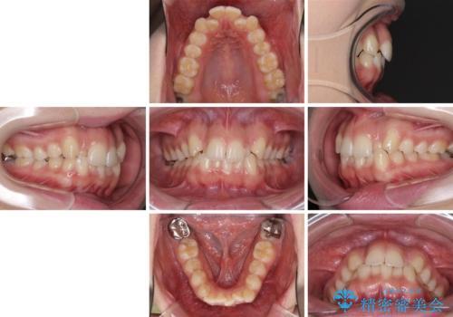 骨格的に左右にずれいている 前歯のデコボコをインビザラインで解消の治療前
