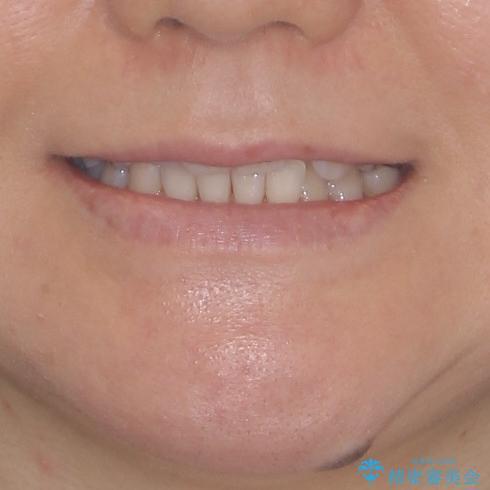 前歯のクロスバイト インビザライン矯正で改善の治療前(顔貌)