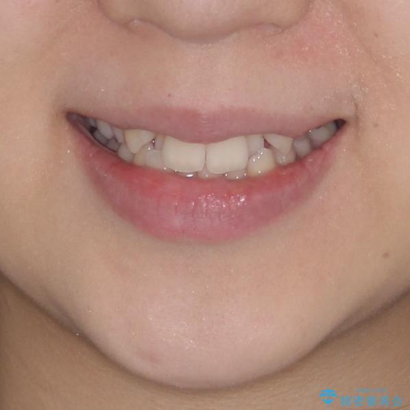 骨格的に左右にずれいている 前歯のデコボコをインビザラインで解消の治療前(顔貌)