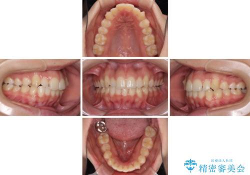 骨格的に左右にずれいている 前歯のデコボコをインビザラインで解消の治療中