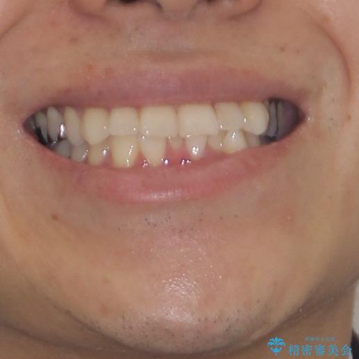 冷たいものがしみて奥歯が痛い 気になる歯並びも治したの治療前(顔貌)