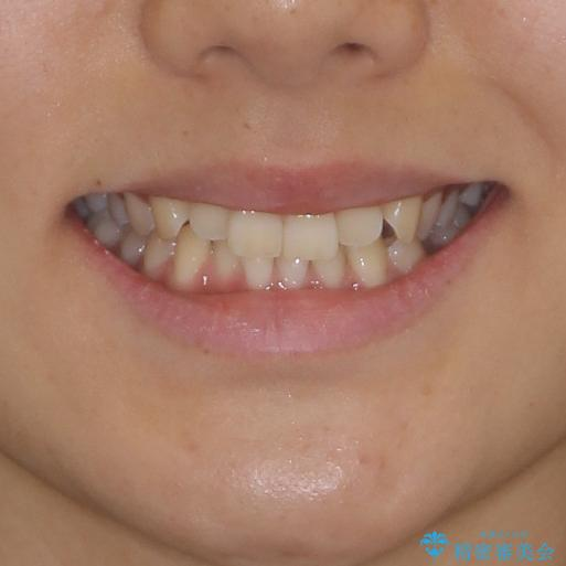 乳歯を抜いてインプラントに 咬み合わせ改善のインビザライン矯正の治療前(顔貌)