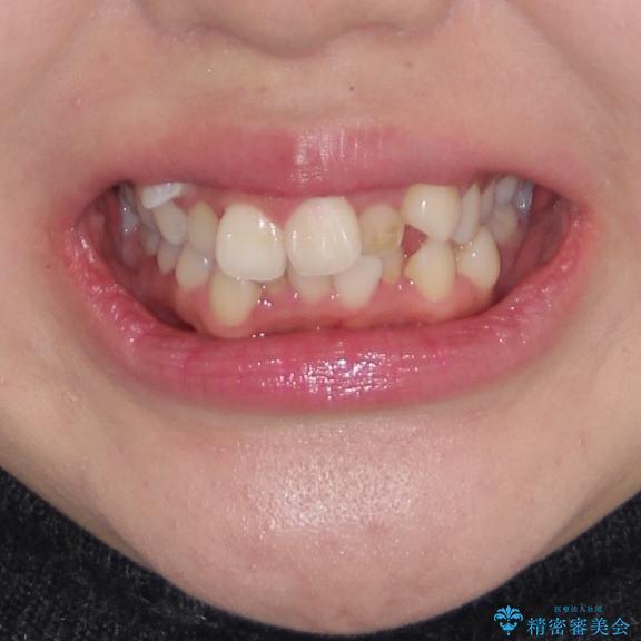 著しい叢生と顎骨のズレ ワイヤー装置による抜歯矯正の治療前(顔貌)