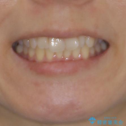 短期間で仕上げたい ワイヤーでの非抜歯矯正の治療前(顔貌)