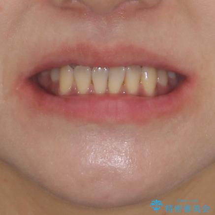反対咬合で痛む前歯を改善 インビザラインによる矯正治療の治療前(顔貌)