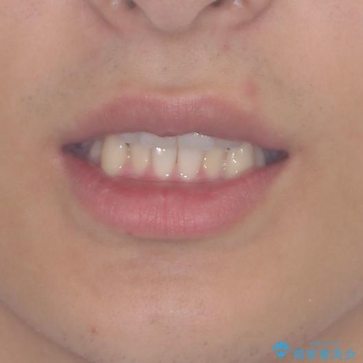 狭い歯列と前歯のデコボコ インビザラインによる矯正治療の治療前(顔貌)