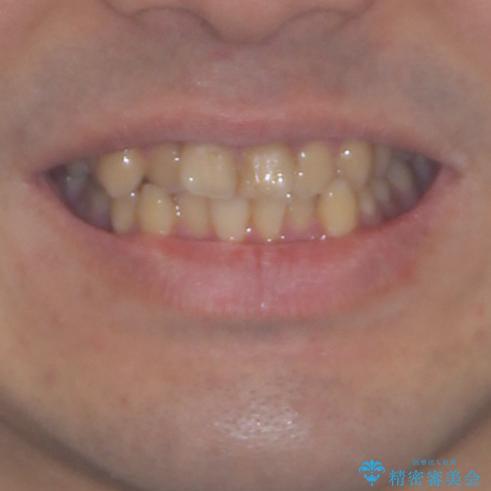 歯列全体のクロスバイトを治したい ワイヤー装置による矯正治療の治療前(顔貌)