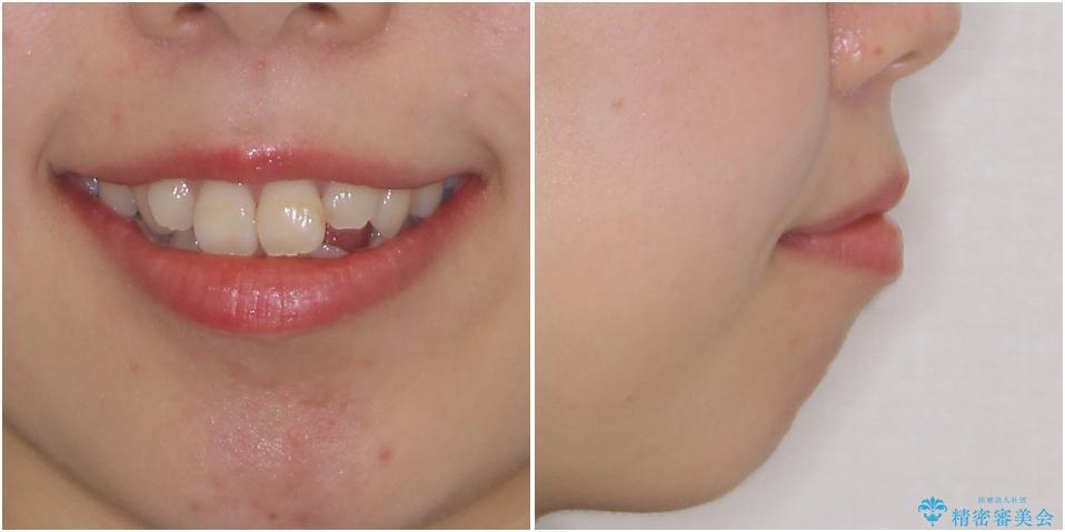 ダンサーとしての仕事を続けながら インビザラインによる抜歯矯正の治療前(顔貌)