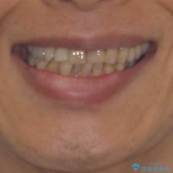 歯列不正と歯周病 総合歯科治療による全顎治療の治療前(顔貌)